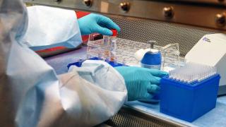 San Francisco Public Health Lab testing for Coronavirus