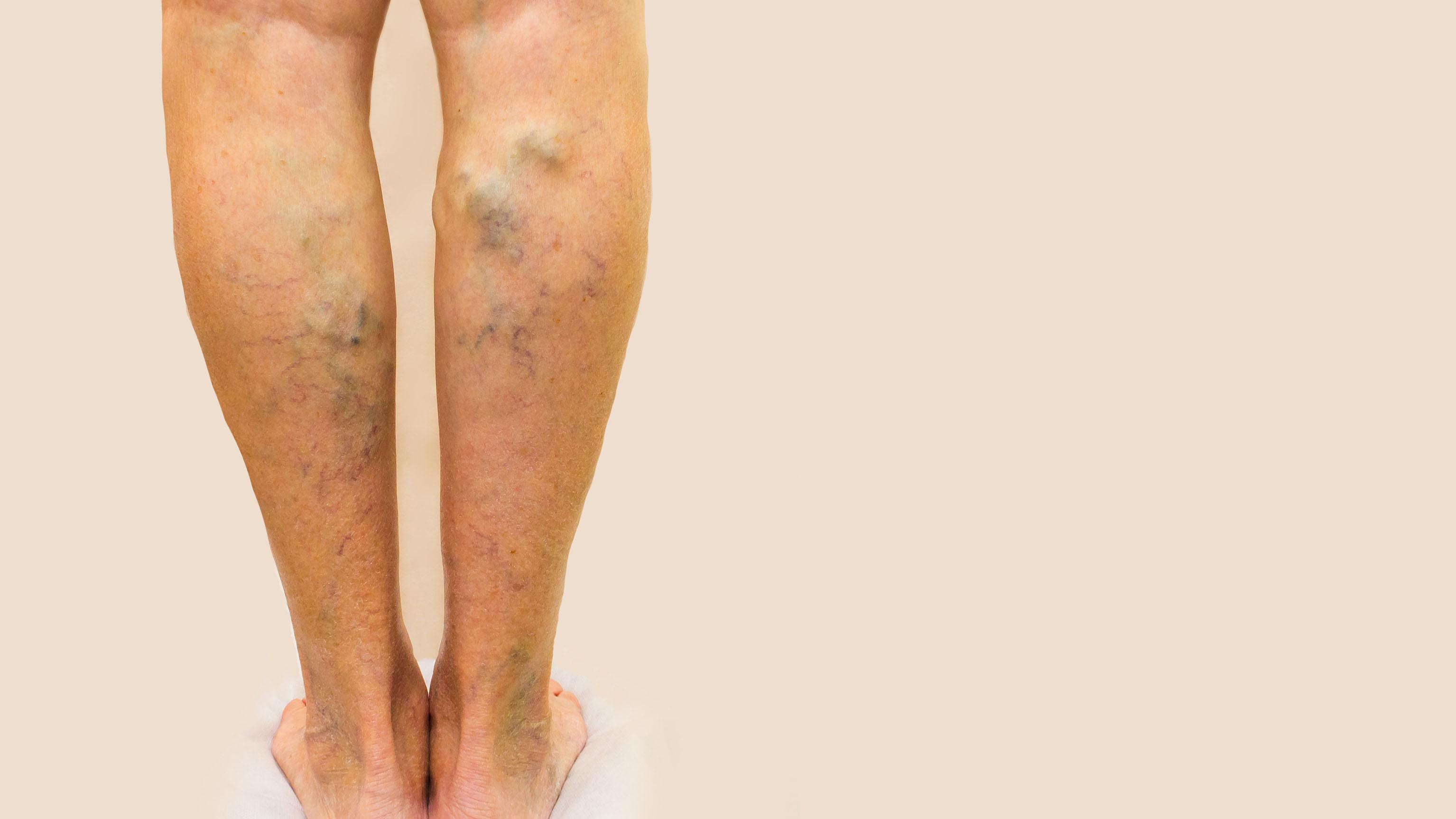 lo que hace que las venas exploten en las piernas