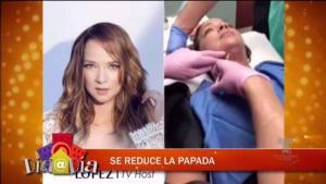 Adamari López se reduce la papada