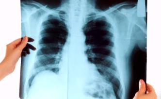 Terapia le da la batalla al cáncer de pulmón