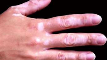 Avanzan nuevos tratamientos contra el vitiligo