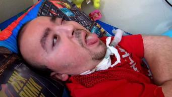 Imploran ayuda para paciente de síndrome de Opitz