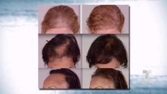 Mitos y realidades de la Alopecia
