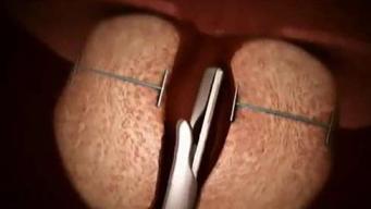 Nuevo procedimiento beneficiaría a miles de hombres