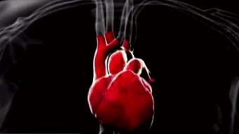 Importante reconocer los síntomas de un ataque cardíaco