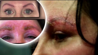 "El peligro oculto del tatuaje de cejas o ""microblading"""