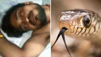 Con furia: ataca a mordiscones a serpiente que lo mordió