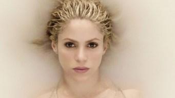 Shakira podría estar perdiendo su cabello