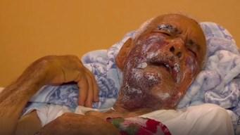 Brutal golpiza deja en hospital a anciano inmigrante
