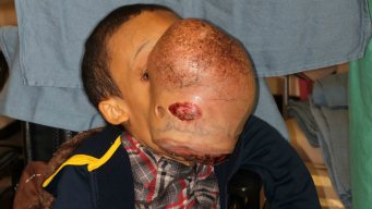 Emanuel, niño hispano con tumor de 10 libras en el rostro