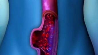 Aneurisma Aortica Abdominal: 95% de los pacientes muere