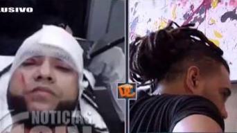 Mala Fe muestra las heridas del ataque a cuchillazos