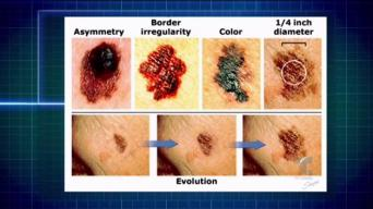 Protégete del melanoma