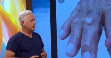 ¿Qué es la gota? Causas, síntomas y tratamiento de esta artritis