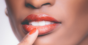 Los riegos del blanqueamiento dental