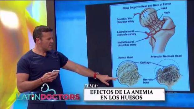 [TLMD - PR] Efectos de la anemía en los huesos