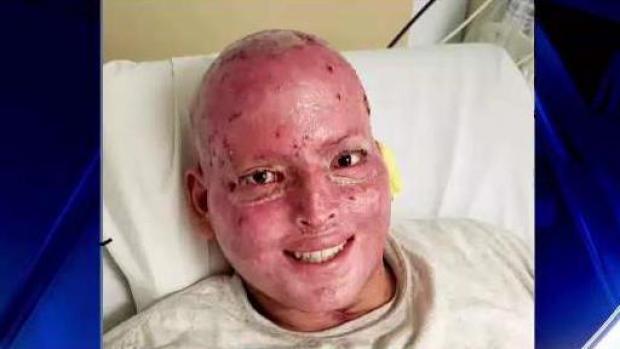 Agradecido estudiante de medicina que sufrió quemaduras en México
