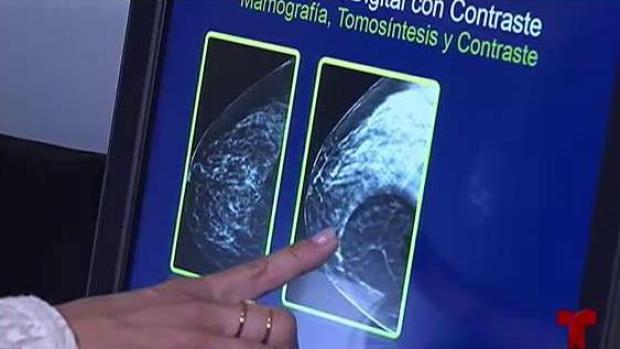 [TLMD - PR] Nueva tecnología para detectar cáncer de mama