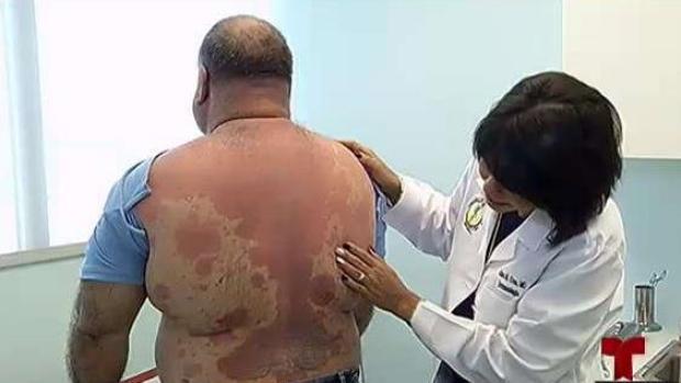 [TLMD - PR] Psoriasis: mucho más que una condición de la piel