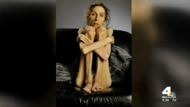 Fotos: Se recupera de anorexia tras pesar unas 40 libras