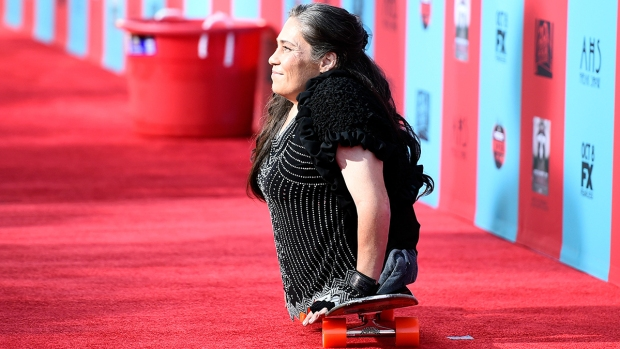 """Fotos: La fallecida actriz sin piernas de """"American Horror Story"""""""