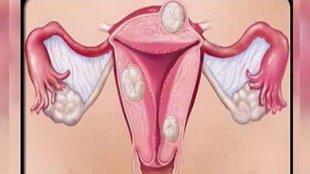 [TLMD - PR] Síntomas y factores de riesgo de cáncer de endometrio