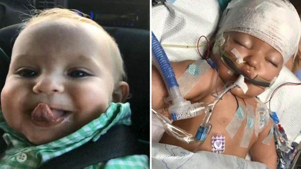 Bebé con gripe termina en coma y con convulsiones