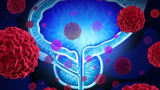 Qué es el cáncer de próstata y cuáles son sus síntomas