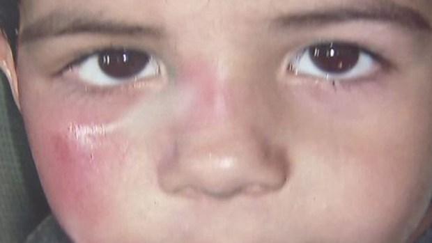 Por horrendas heridas a su niño, hispano denuncia a guardería