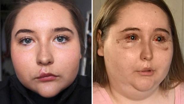 [TLMD - LV] Joven asegura que brutal diarrea la dejó ciega