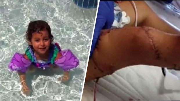 Madre relata el feroz ataque que despedazó la pierna de su hija