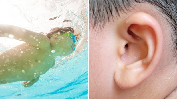 """El peligroso """"oído de nadador"""": qué es y cómo prevenirlo"""