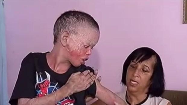 Padece una condición severa de la piel y sólo piden prenderle el aire
