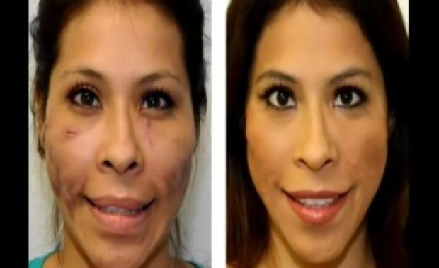 La increíble reconstrucción del rostro de una mujer