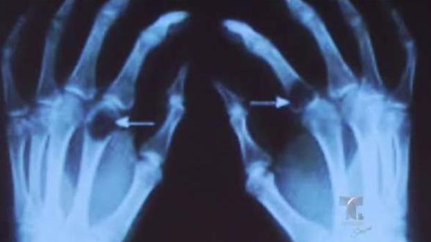 Efectos de la tiroide en los huesos