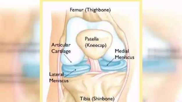 Dosis de salud: peligros de la rotura de menisco