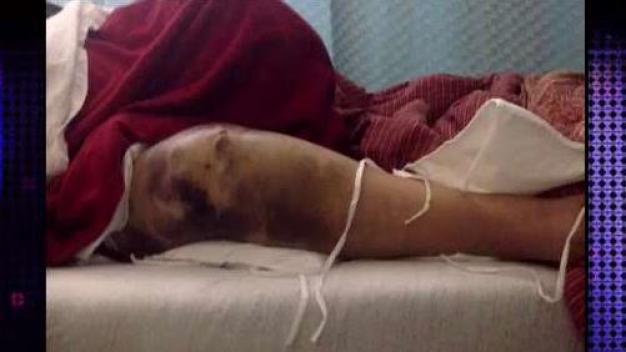 Insólito: mujer asegura no se ha recuperado a 5 años de cirugía