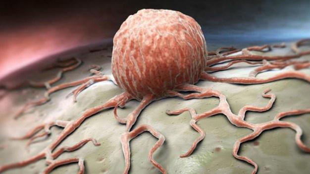 Cómo identificar síntomas del cáncer
