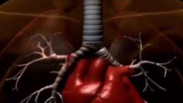 Alergista explica lo que pudo haberle pasado a Vico C