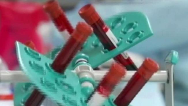 Generación Millennial baja la guardia: se triplican casos de VIH