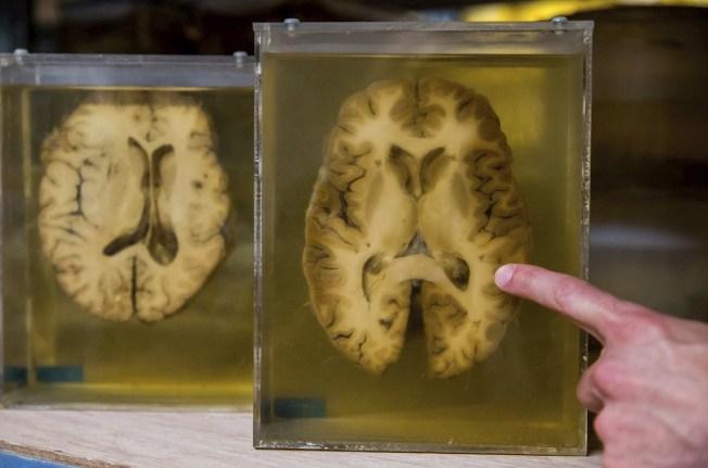 Nuevo descubrimiento podría ayudar a proteger del alzhéimer